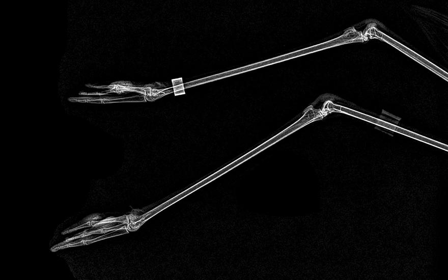 röntgenfoto's